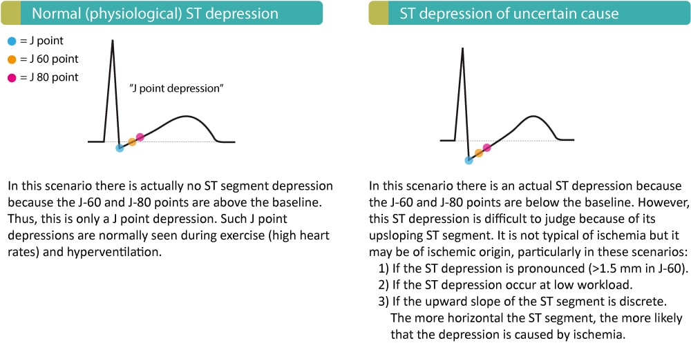 Figure 4. ST segment depressions not typical of myocardial ischemia.