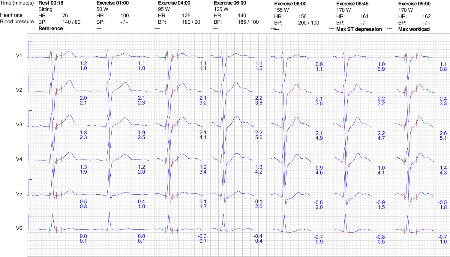 Figure 9. ECG reaction in chest leads during exercise.
