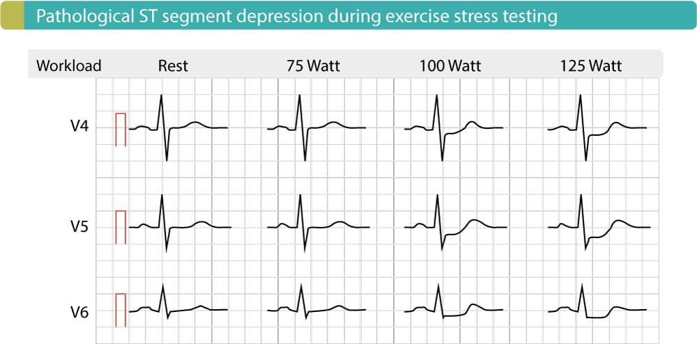 Evaluation Of Exercise Stress Test Ecg Symptoms Blood Pressure