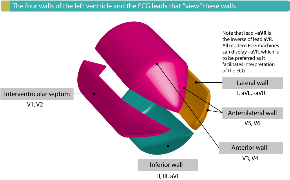 "Figure 4. The four walls of the left ventricle and the ECG leads that reflect these walls. The term ""contiguous leads"" refers to any two leads that are anatomical neighbors. Hence, ST elevation in leads V1 and V2 would fulfill criteria for STEMI. ST elevation in V2 and V3 would also fulfill criteria for STEMI because these two leads are also anatomical neighbors, even if this illustration shows that V2 reflects the septal wall and V3 the anterior wall."