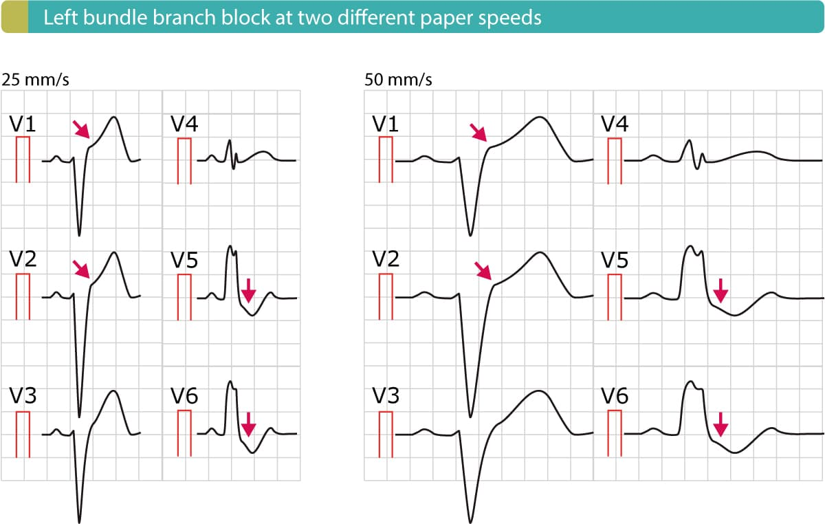 Figure 6. Left bundle branch block (LBBB) at two different paper speeds. Note the ST elevations and ST depressions.
