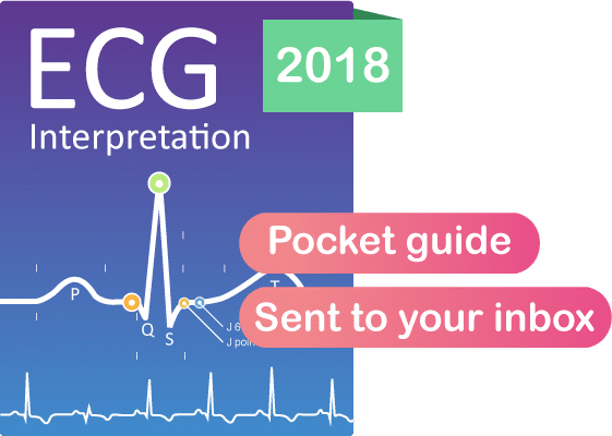 ECG book interpretation pocket guide EKG