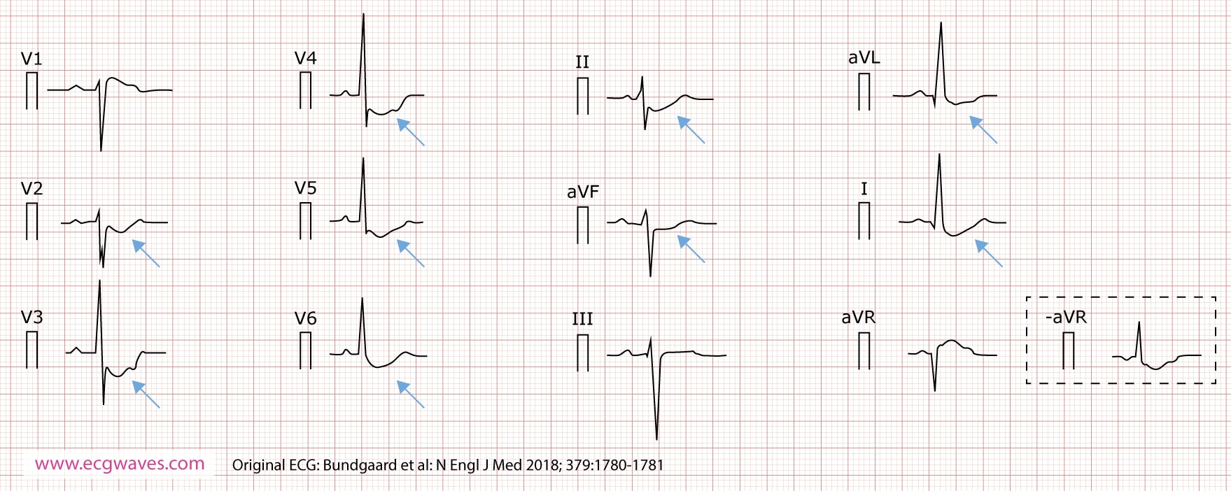 12-lead ECG (presented according to Cabrera), recorded at 63 years of age, demonstrates concave-upward ST-segment depression in leads I, II, aVL, aVF, and V2 through V6; and ST-segment elevation in lead aVR (which corresponds to an identical ST-segment depression in the inverted lead -aVR). A notch is evident in the ascending part of the ST segment.