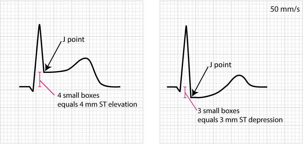 Figure 2. Examples of measuring ST segment elevation and ST segment depression. Myoardial ischemia is very likely if these ECG changes are accompanied by chest discomfort or other symptoms suggestive of ischemia.