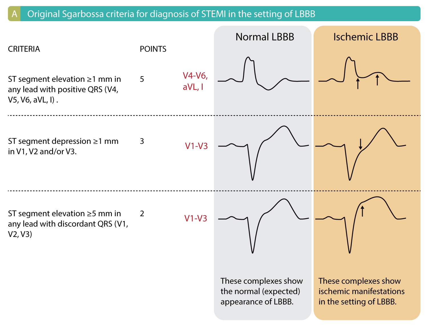 Figure 1A. ECG criteria (Sgarbossa criteria) for acute STEMI in the setting of LBBB. Each criteria gives 2 to 5 points. Studies show that a cut-off of ≥3 points yields a sensitivity of 20–36% and specificity of 90–98% for acute STEMI in the setting of LBBB.