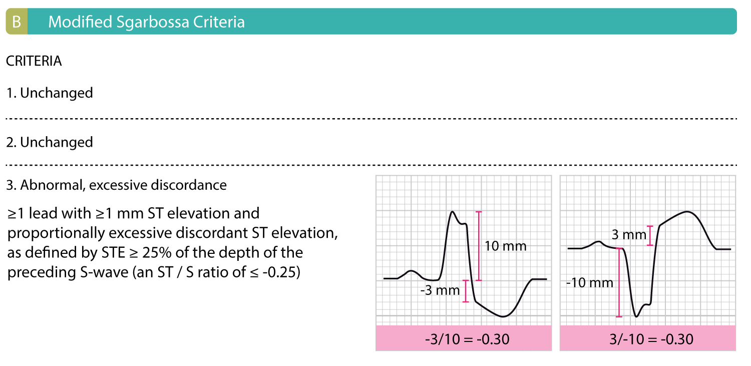 Figure 1B: Criteria 1 and 2 of the original Sgarbossa criteria are unchanged. The R or S wave, whichever is most prominent, and ST segments (relative to the PR segment), is measured to the nearest 0.5 mm. The ST/S ratio is calculated for each lead that has both discordant ST deviation ≥1 mm.