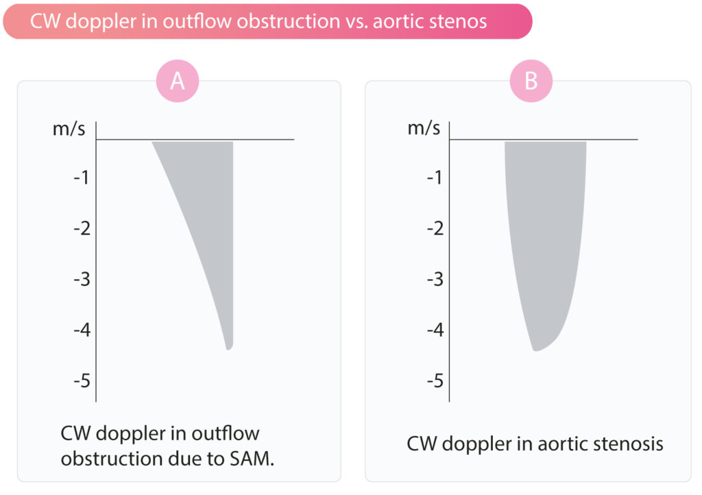 Figure 3. Continuous wave (CW) doppler in the LVOT in (A) obstruction due to SAM and septal hypertrophy and (B) aortic stenosis.