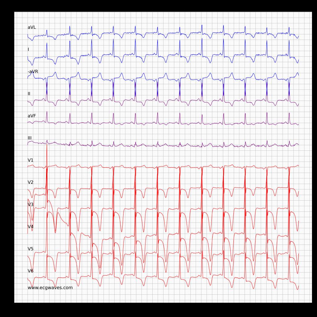ECG in hypertrophic obstructive cardiomyopathy (HCM, HOCM)