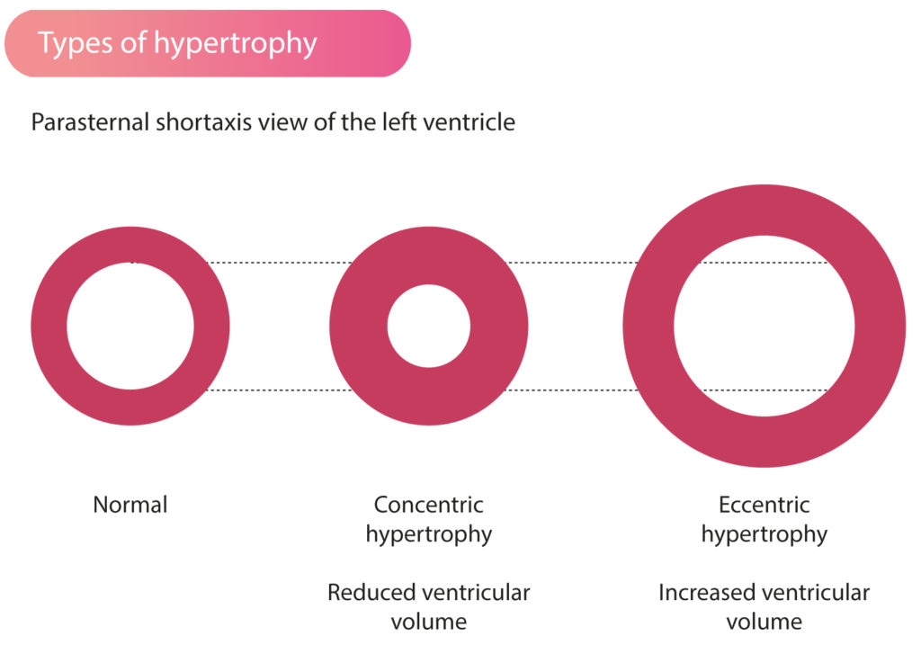 Figure 1. Types of left ventricular hypertrophy. Left ventricular volume is reduced in concentric hypertrophy. Eccentric hypertrophy results in increased ventricular volume.