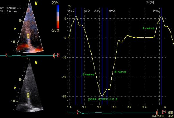 Figure 5. Examination of strain (longitudinal strain) with tissue Doppler. Septal strain is examined. Y-axis depicts strain (% deformation) and X-axis depicts time. Source | License.