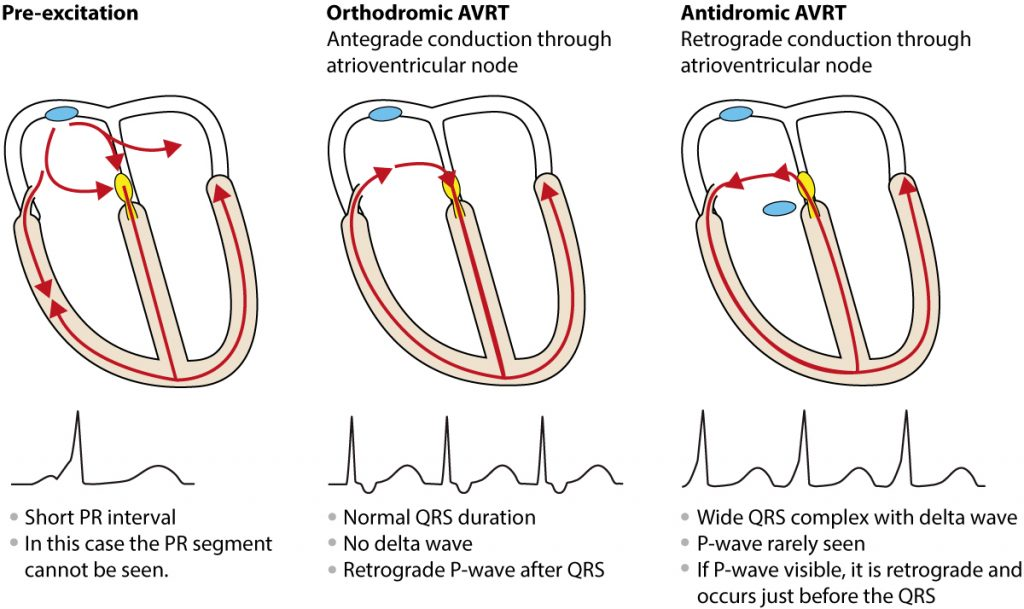 Figure 3. Antidromic and orthdromic AVRT.
