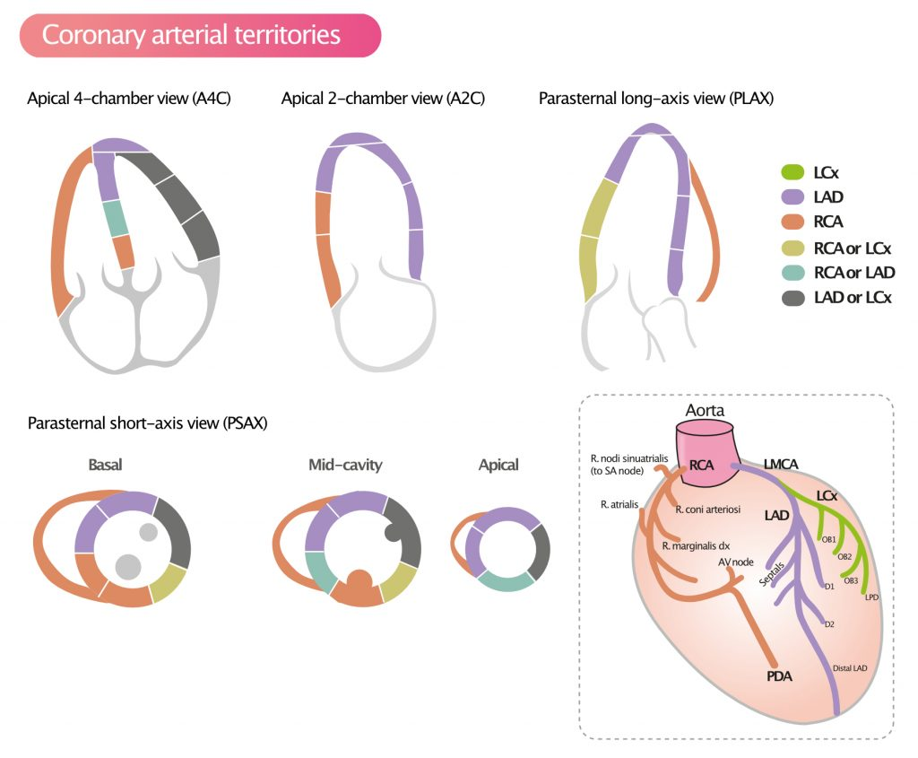 Figure 3. Assignment of the 17 myocardial segments to the territories of the left anterior descending (LAD), right coronary artery (RCA), and the left circumflex coronary artery (LCX).