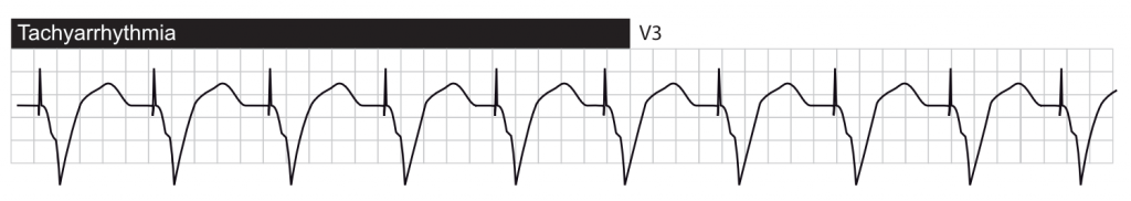 Tachyarrhythmia with ventricular pacing.