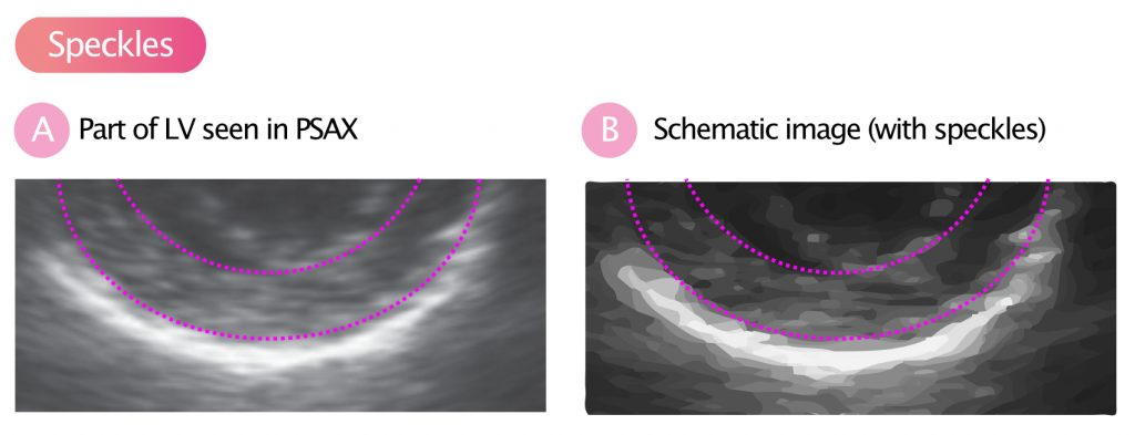 "Figure 8. (A) The myocardium has been encircled within the dashed lines. As seen here, the myocardium is not homogeneous on the ultrasound image. It appears structureds. These structures are called speckles"" (B) The same image with speckles highlighted."