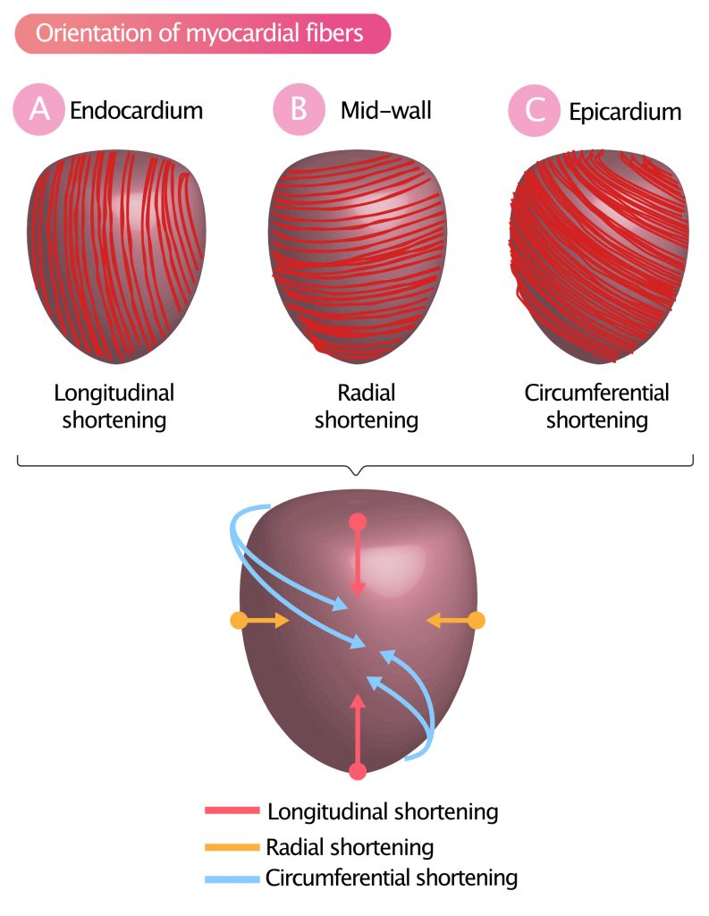 Figure 1A-2C. Orientation of myocardial muscle fibers result in longitudinal, radial and circumferential shortening (contraction).