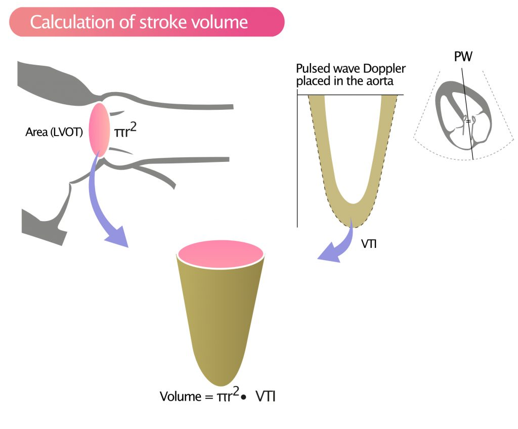 Figure 1. Calculation of stroke volume in LVOT.