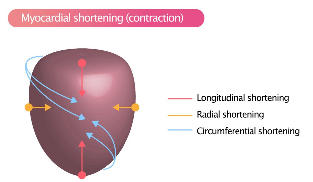 Figure 3. Myocardial contraction (shortening) occurs in three directions: longitudinally, radially and circumferentially.