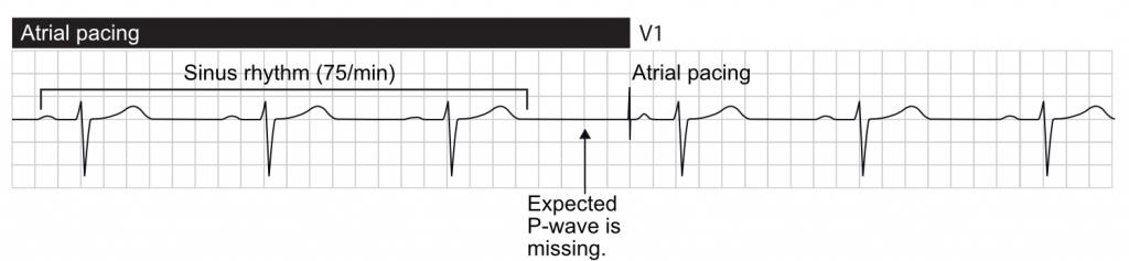 Missing, or delayed, sinus impulse invokes atrial pacing.