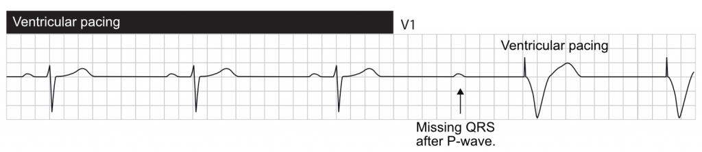 AV block (blocked P-wave) resulting in ventricular pacing.