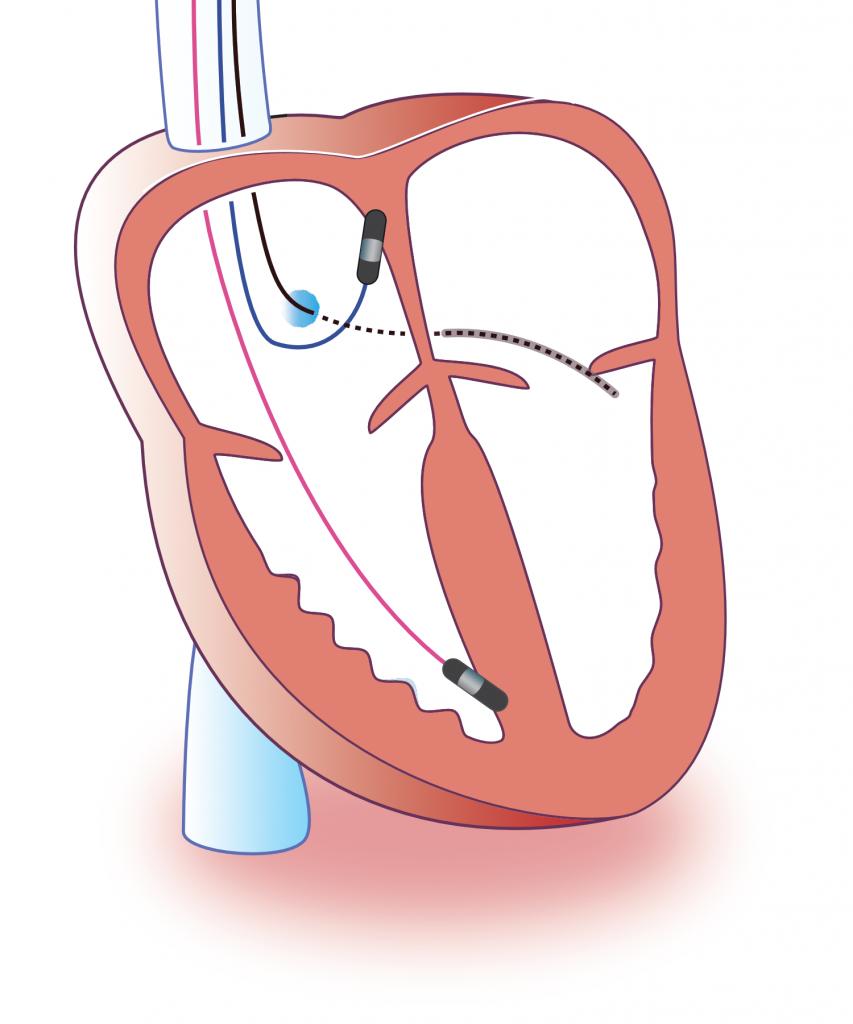 Figure 5. Cardiac resynchronization therapy (CRT)