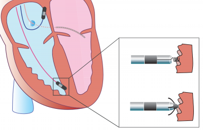 Pacemaker ECG Interpretation CRT ICD