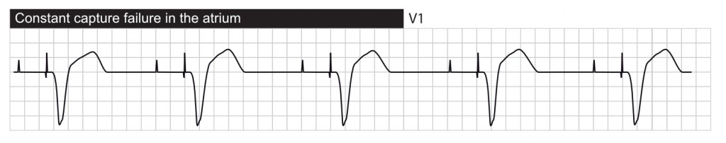 Failure to capture. The pacemaker paces in the atrium but P-waves are not visible, suggesting that the atria are not depolarized.