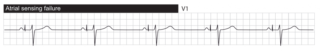 Failure to sense. Atrial pacing occurs after the intrinsic P-wave.