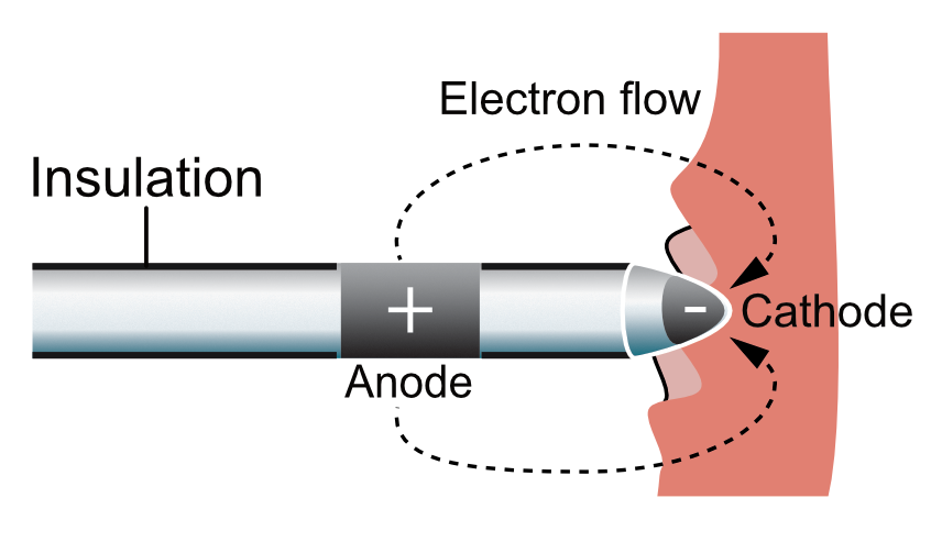 Figure 2. Pacemaker lead.