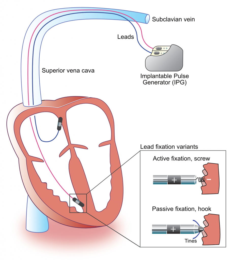 Figure 1. Components of a pacemaker.