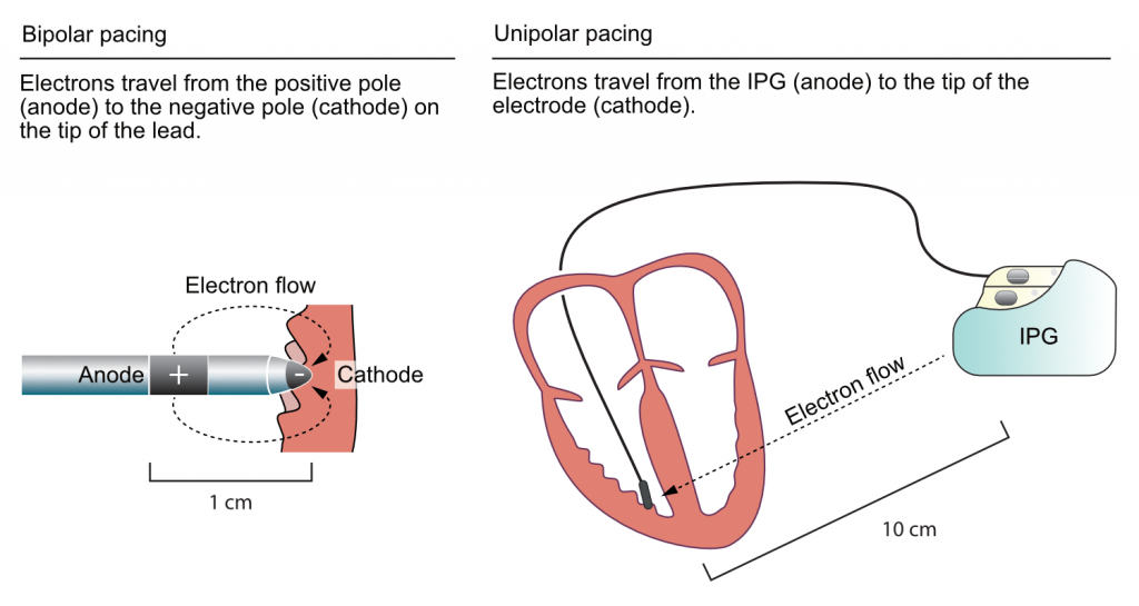Figure 3. Unipolar vs. bipolar pacing.