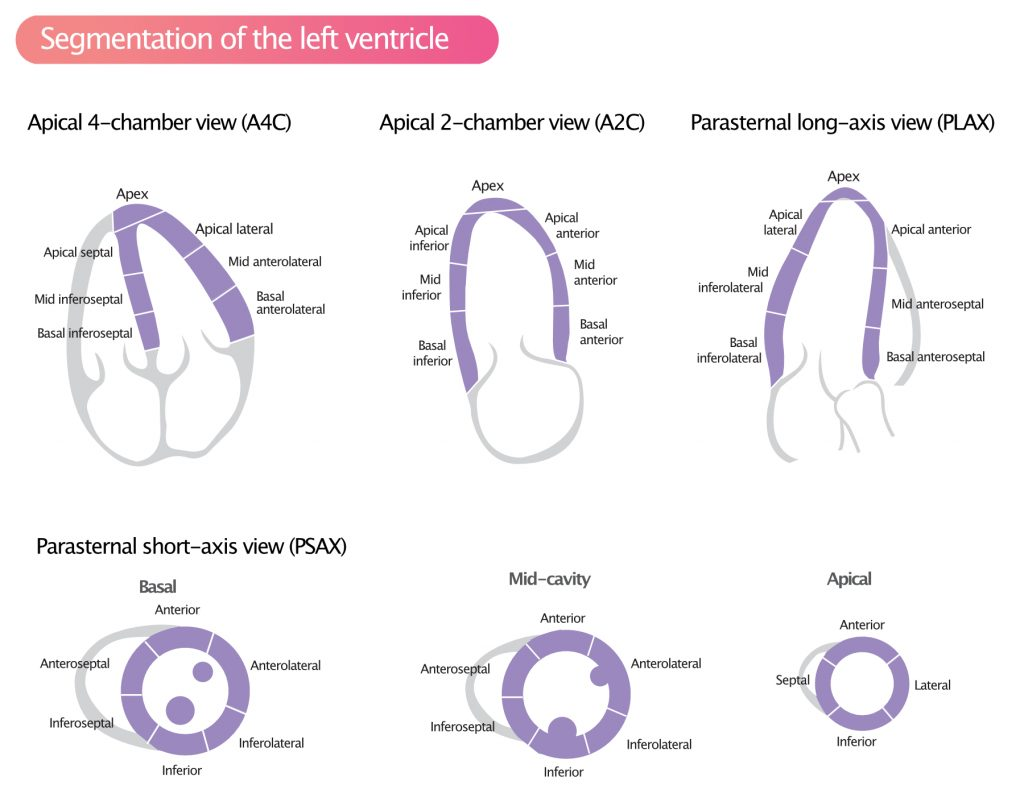Figure 1. Standardized myocardial segmentation and nomenclature for echocardiography. The left ventricle is divided into 17 segments for 2D echocardiography. One can identify these segments in multiple views.