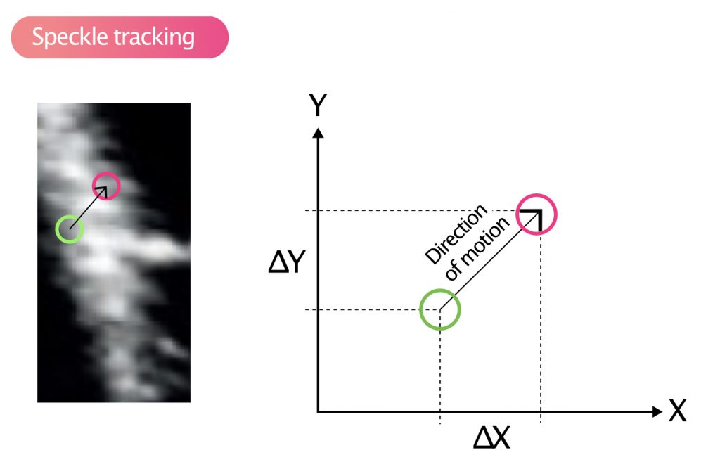Figure 8. Speckle tracking.