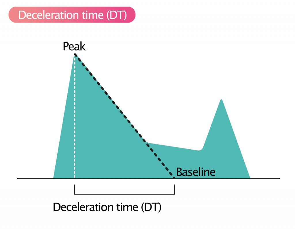 Figure 2. Deceleration time (DT).