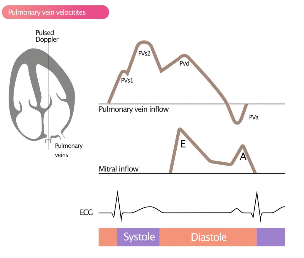 Figure 5. Measurement of pulmonary vein velocities with pulsed Doppler.