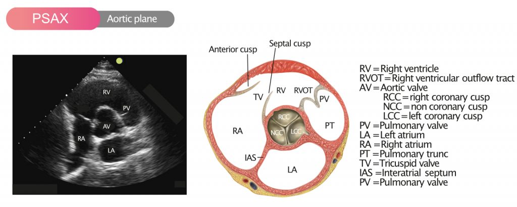 Figure 1. The aortic valve visualized in PSAX (parasternal shortaxis view).