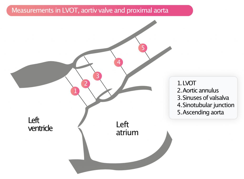 Figure 5. Measurements in LVOT, aortiv valve and proximal aorta.
