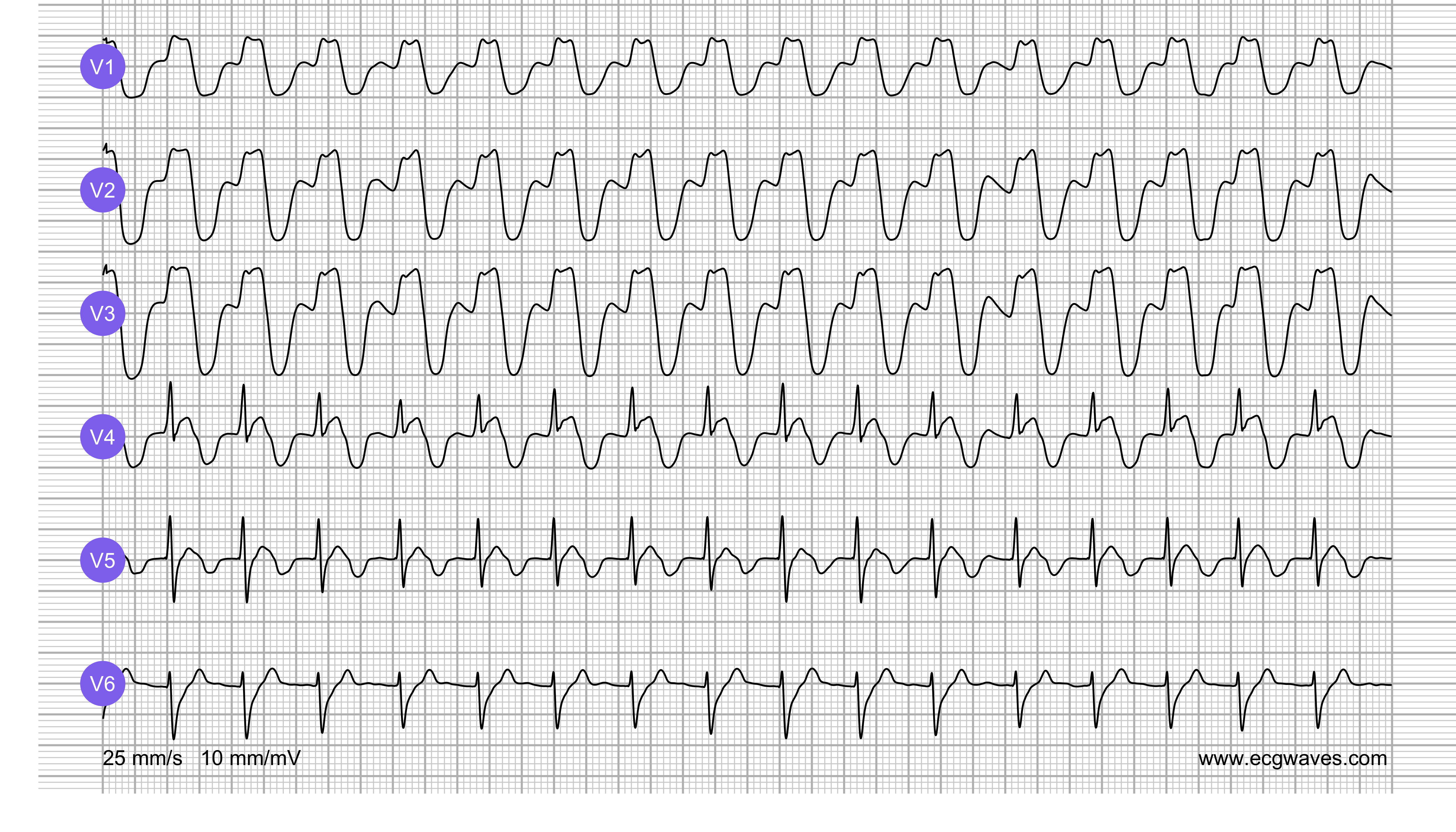 ECG Test (Quiz) Library: Question 1, ECG 2