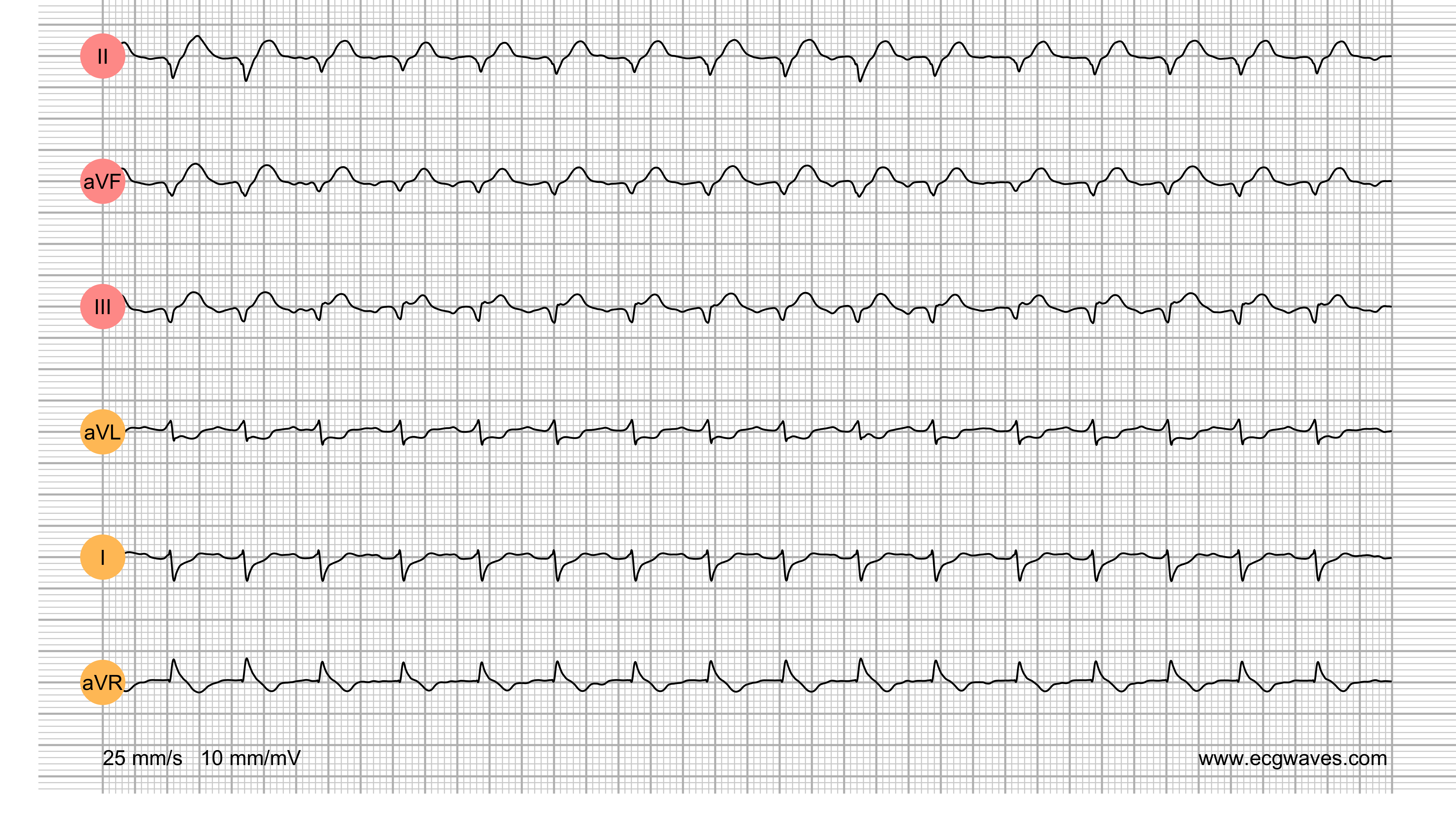 ECG Test (Quiz) Library: Question 1