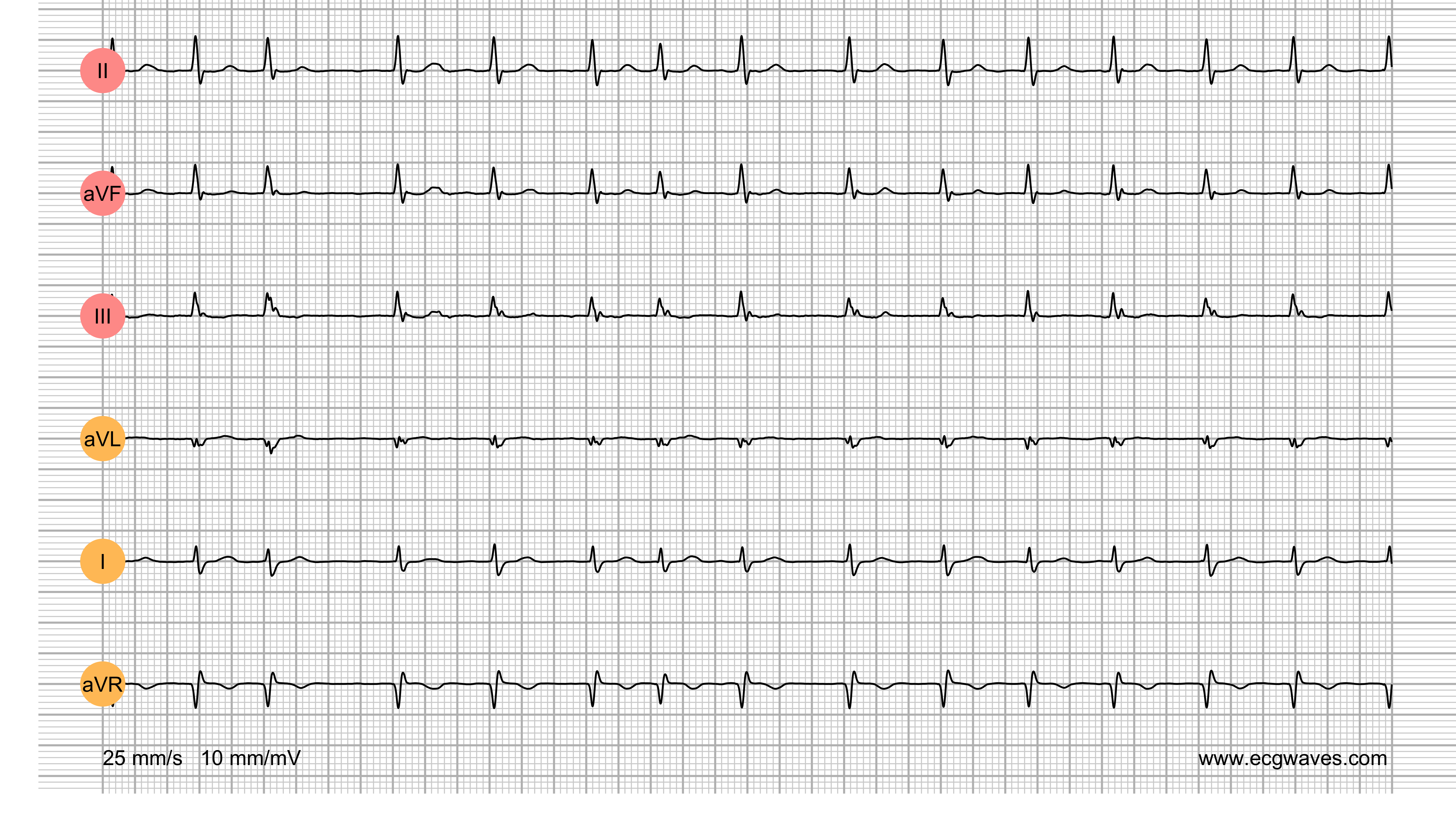 ECG Test (Quiz) Library: Question 2