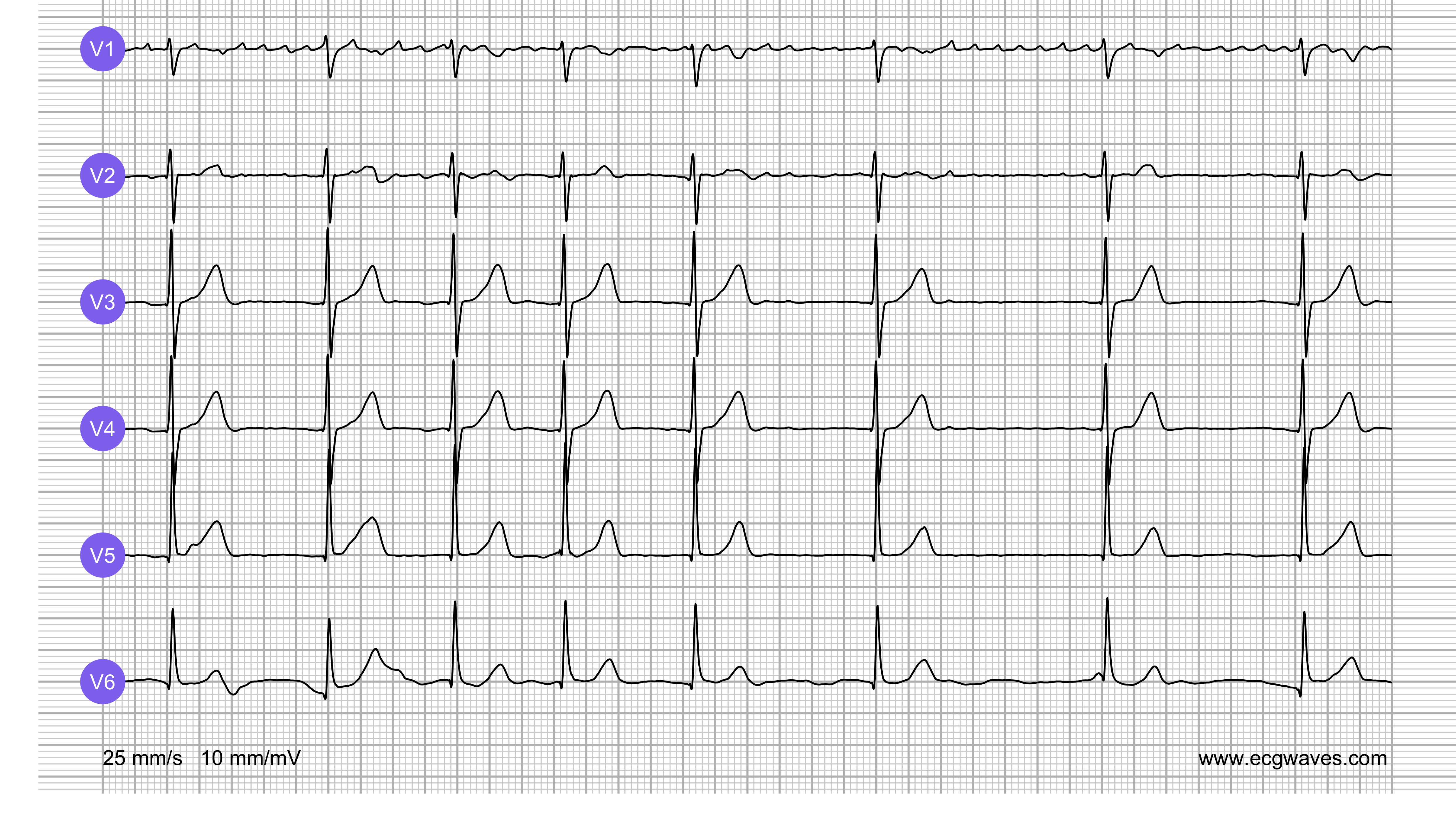 ECG Test (Quiz) Library: Question 3