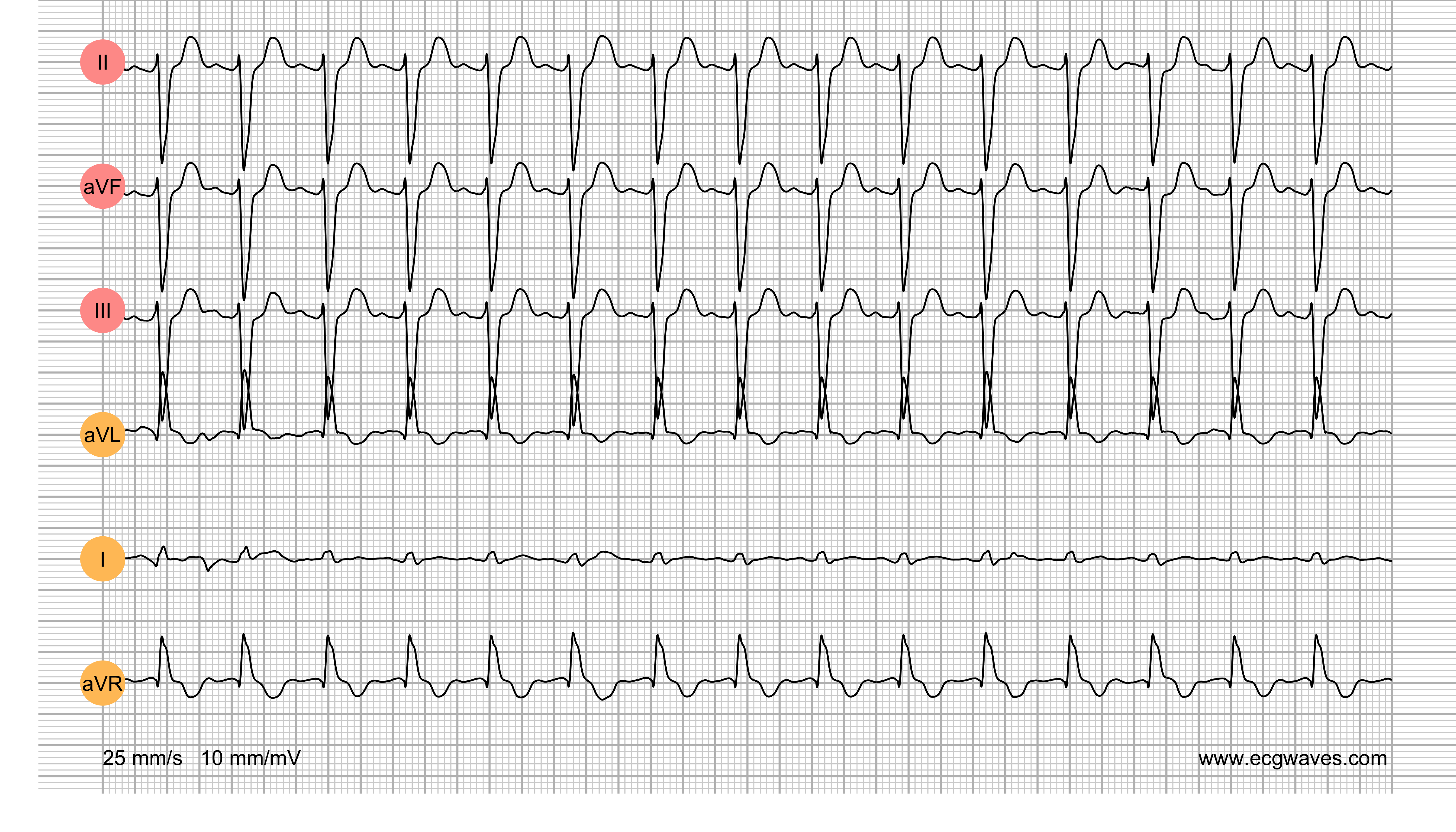 ECG Test (Quiz) Library: Question 4