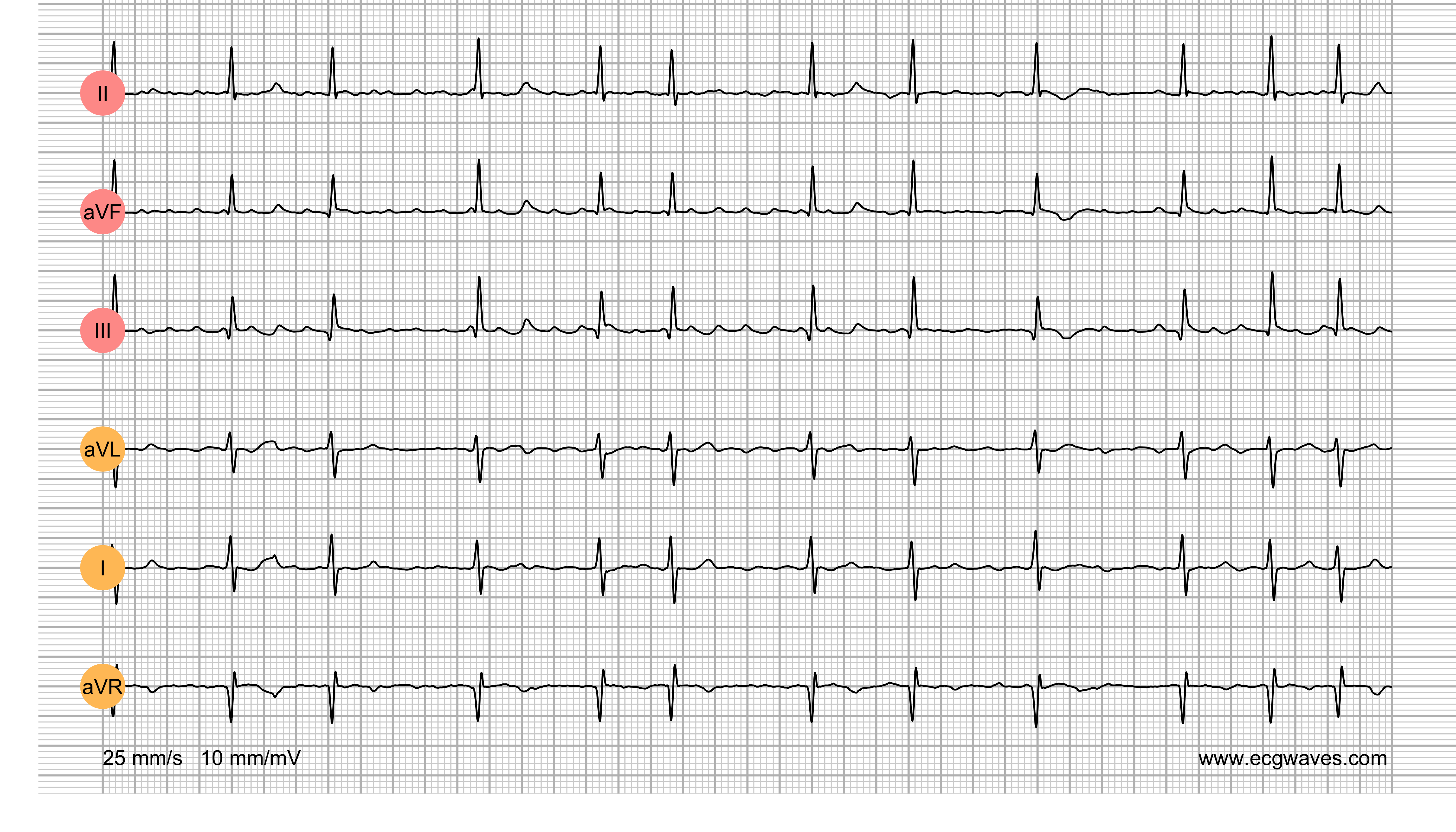 ECG Test (Quiz) Library: Question 5
