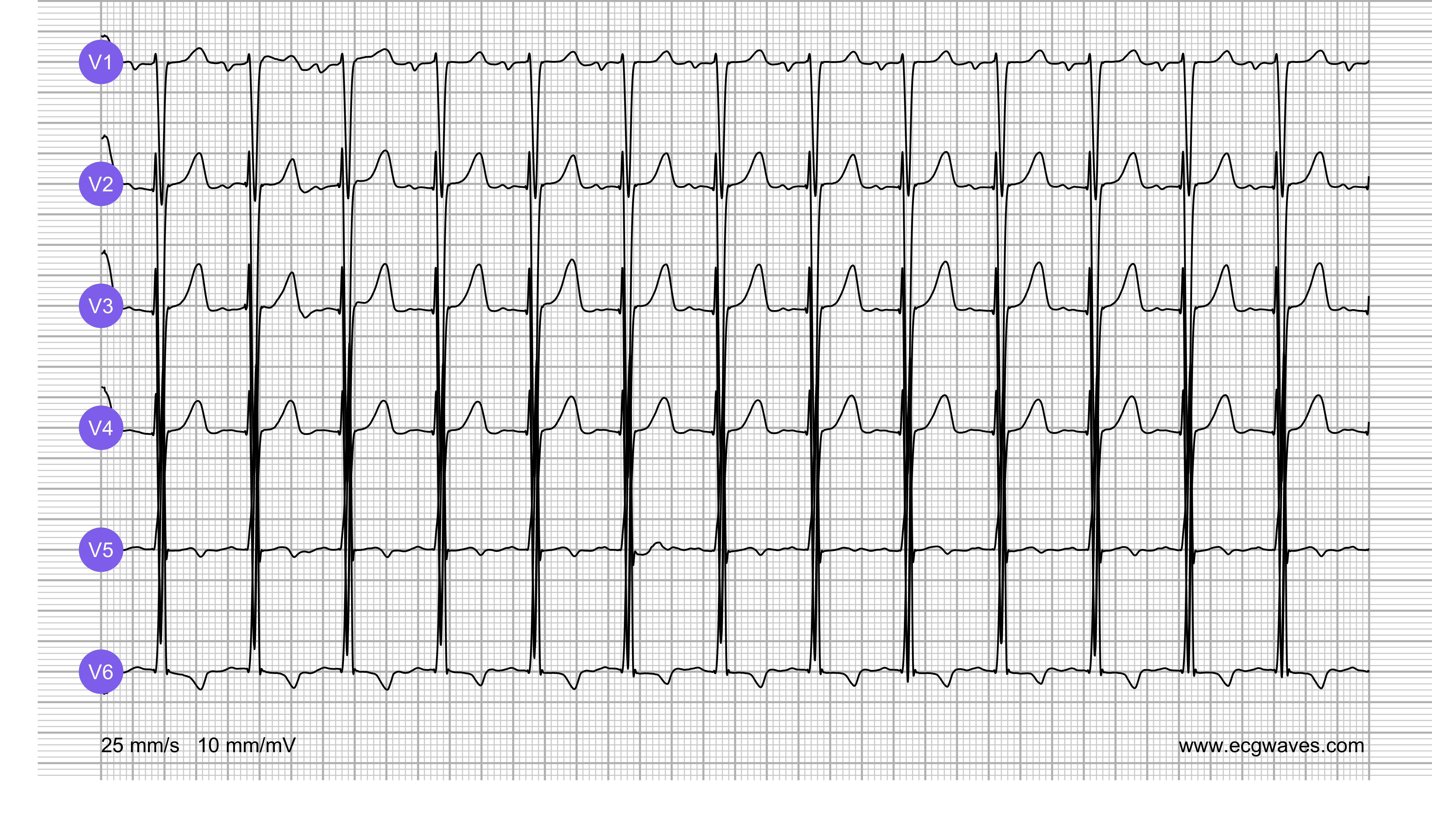 ECG Test (Quiz) Library: Question 6