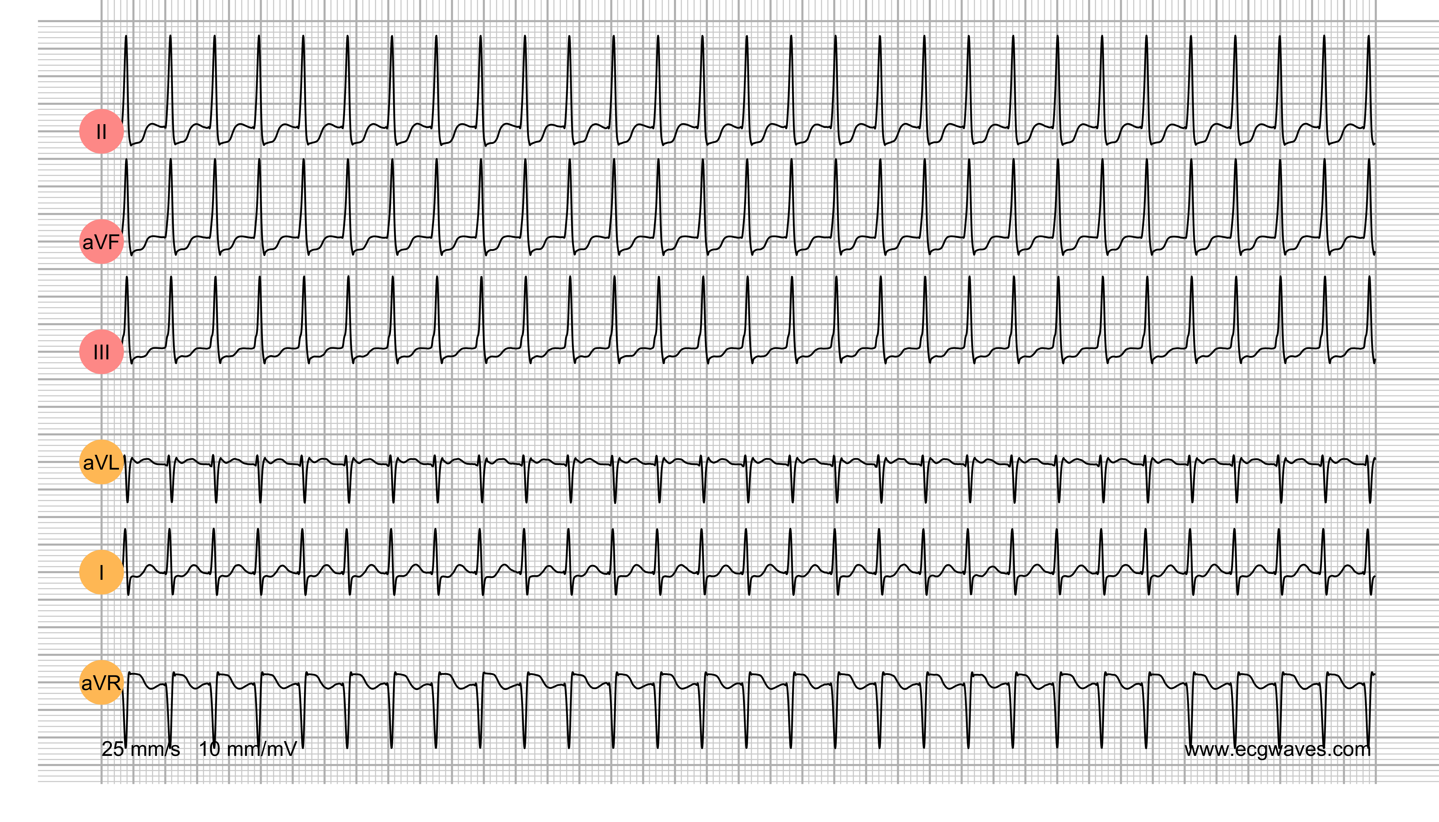 ECG Test (Quiz) Library: Question 7