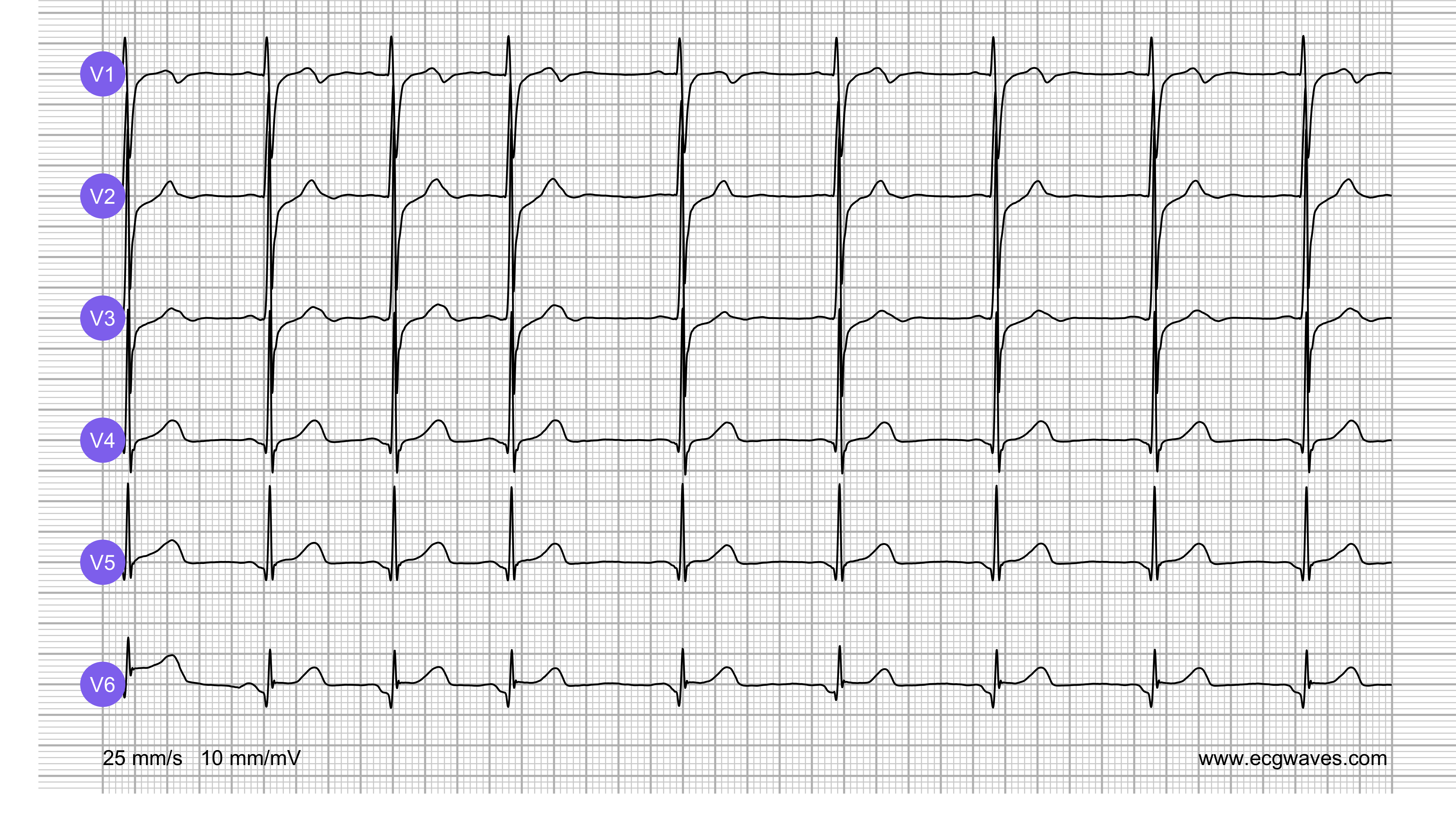 ECG Test (Quiz) Library: Question 8