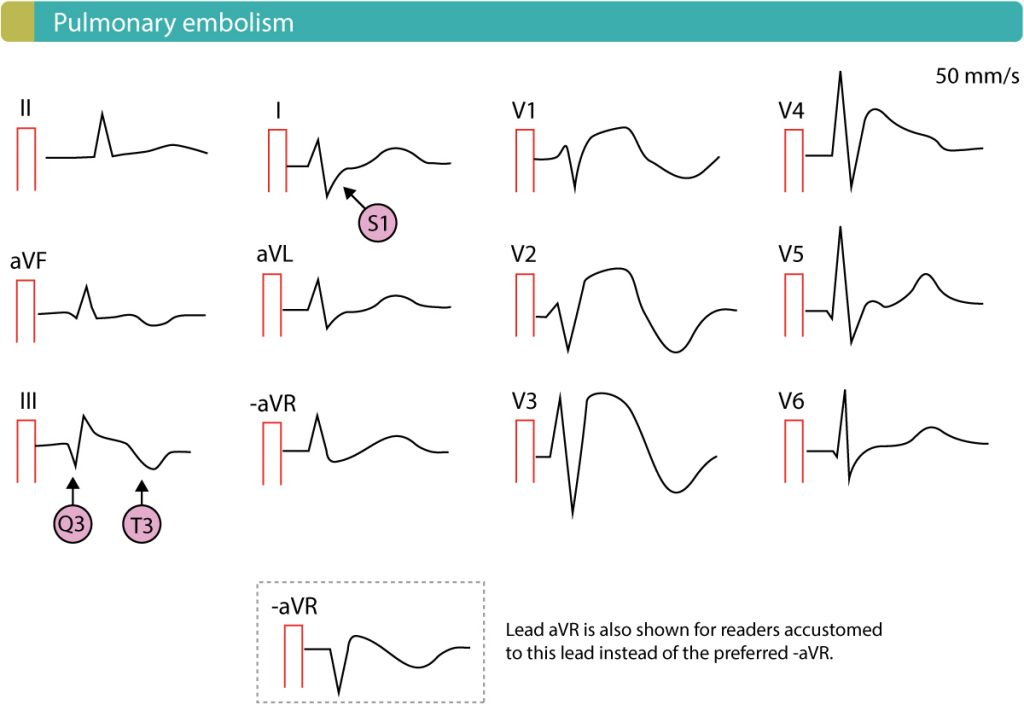 Pulmonary embolism with ST-segment elevations in right sided chest leads.