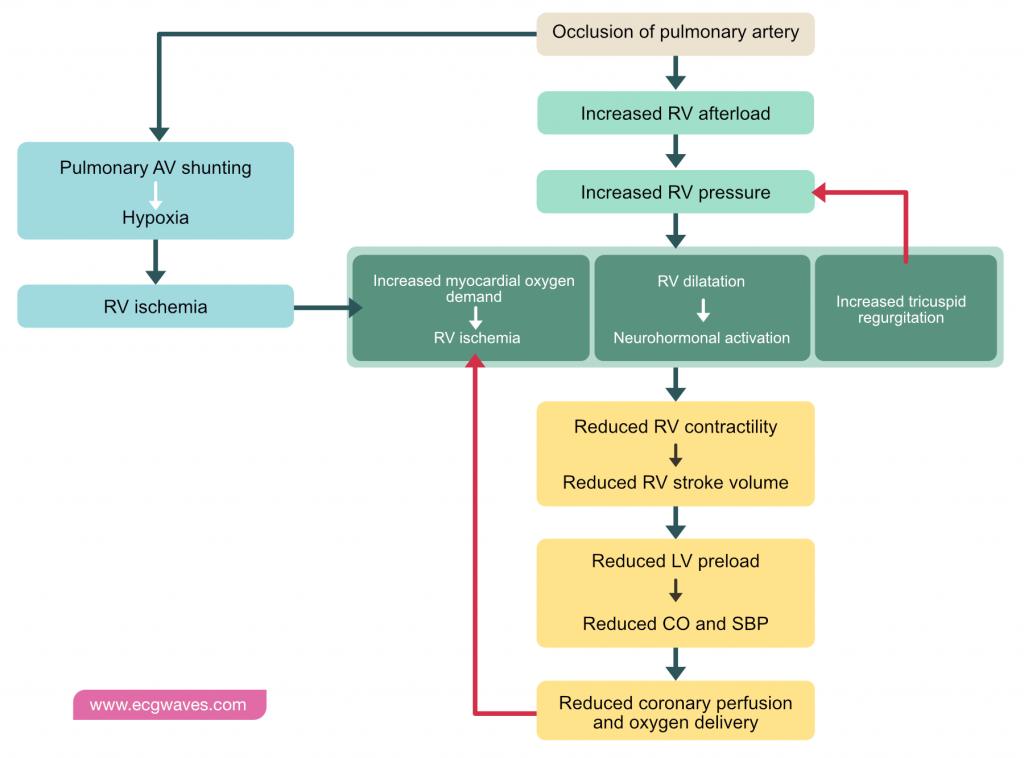 Pathophysiology of pulmonary embolism (PE).