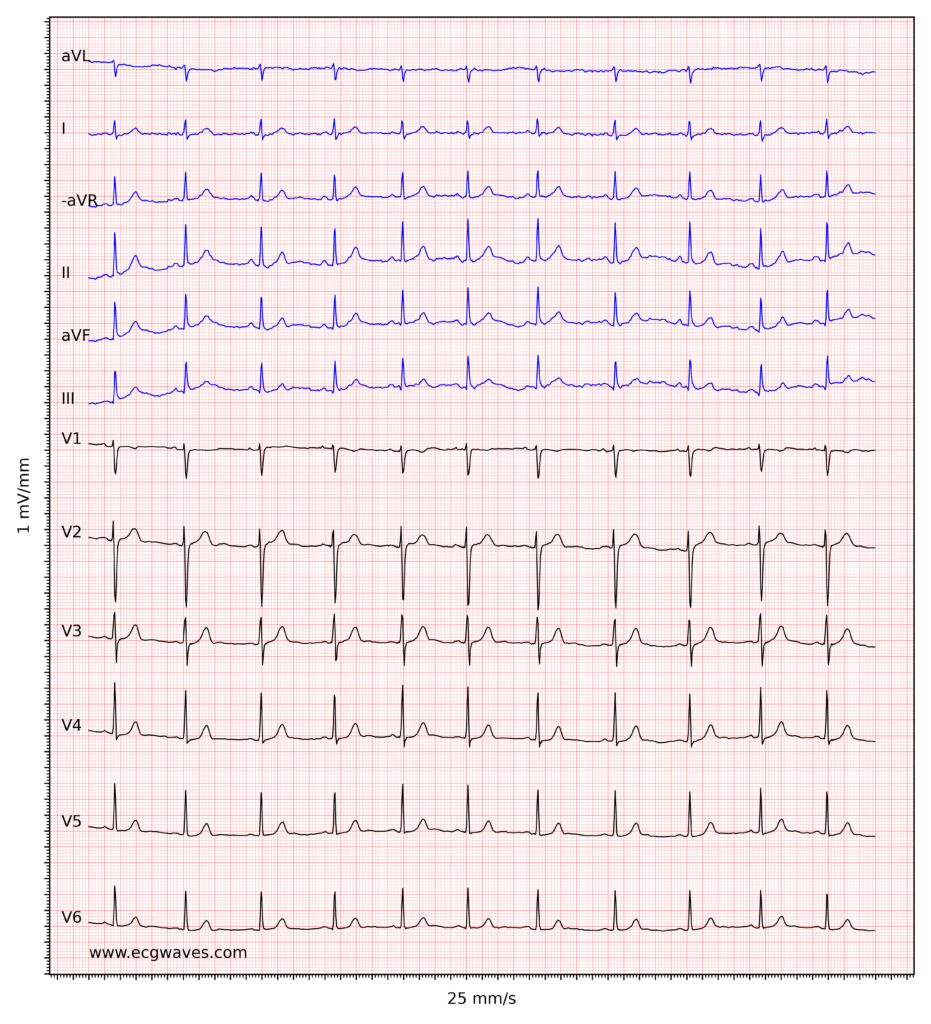 ECG example 4. Normal sinus rhythm.