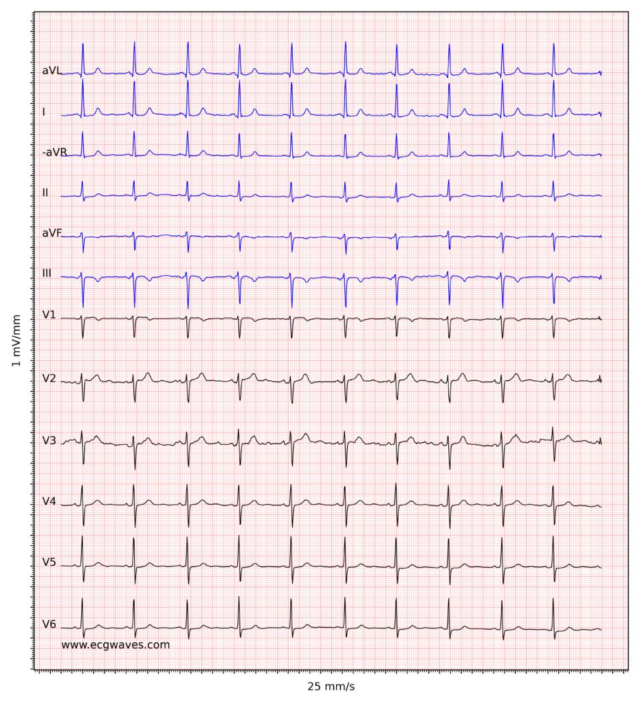 ECG example 5. Sinus rhythm. Negative T-waves in leads aVF and III. Discrete ST-segment depressions in leads V5-V6.
