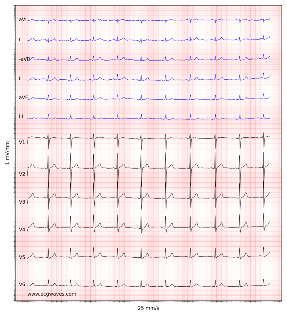 ECG example 6. Sinus rhythm, rapid progression of R-waves in precordial leads. Slight ST-segment elevation in leads V2-V3, which is normal in men and women.